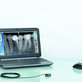 Интраорален сензор ONE Owandy Франция